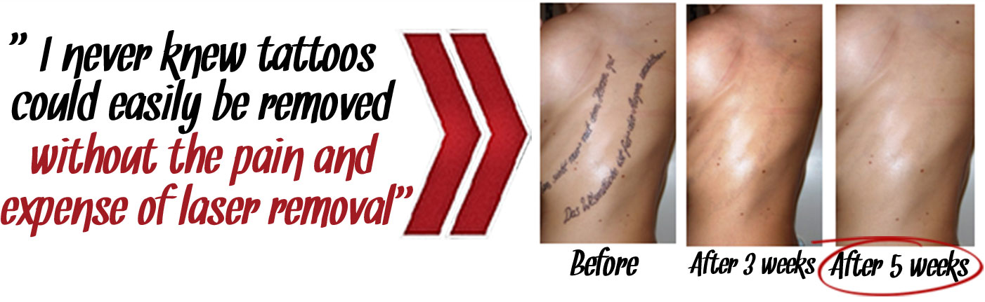 f39fc2c37 The Laserless Tattoo Removal Guide ™ - OFFICIAL WEBSITE